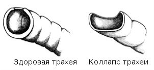форма трахеи