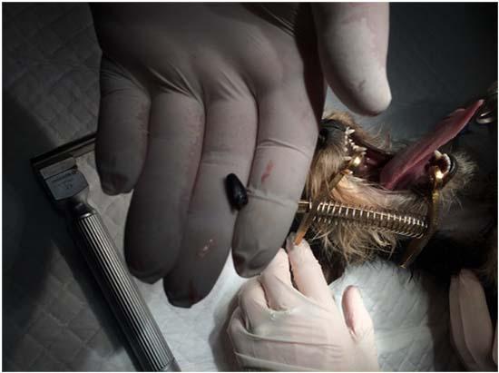 коллапс трахеи операция