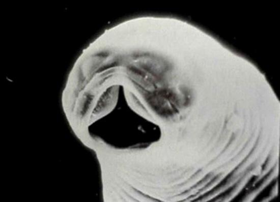 унцинарии под микроскопом